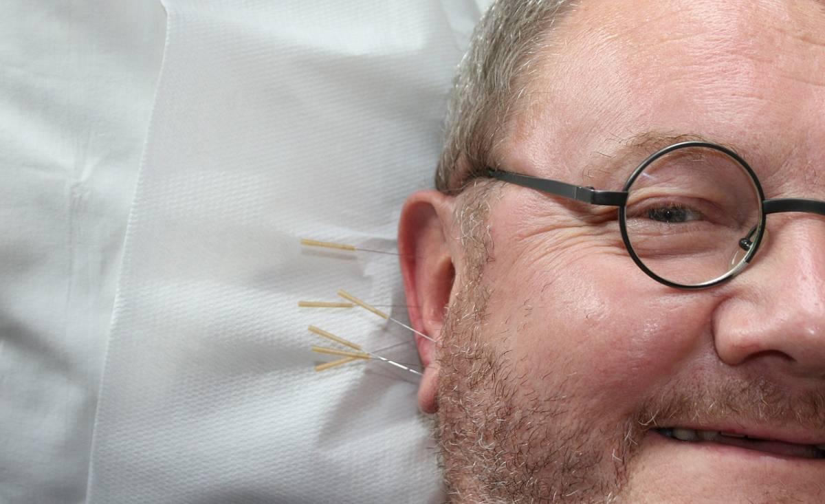 Un homme ayant des aiguilles d'acupuncture plantées dans l'oreille