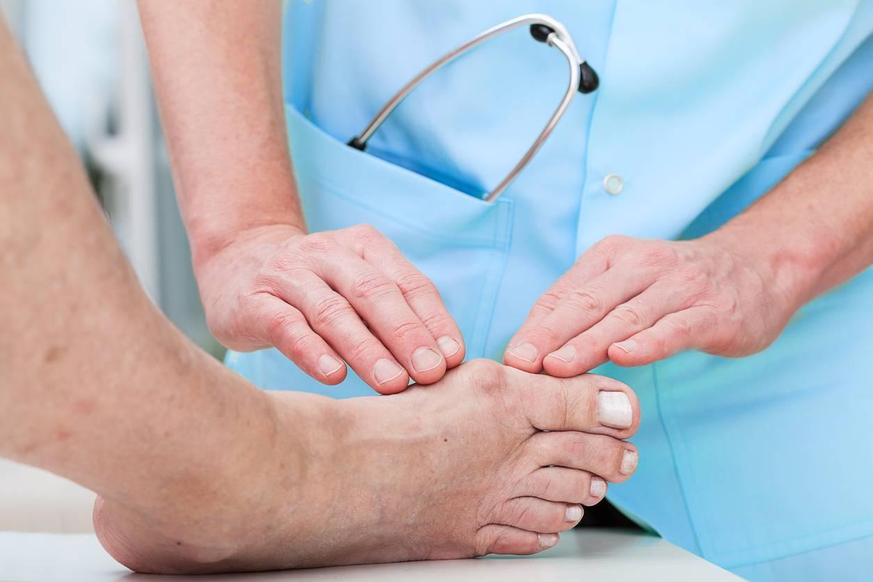 Savoir comment se chausser avec un hallux valgus pour éviter l'opération