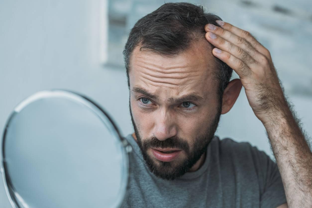 La pelade et la calvitie inquiètent de nombreux hommes