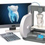 """La """"CFAO dentaire"""" a permis de révolutionner la médecine. Découvrez les avantages des différentes méthodes de cette application dentaire."""